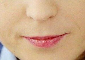 Çok ince bir üst dudak